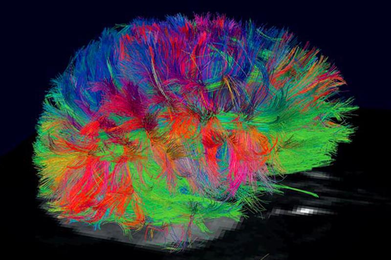 Мозг в 3d