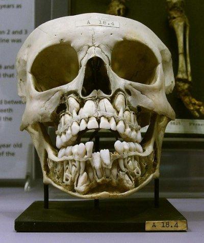 Череп до выпадения зубов