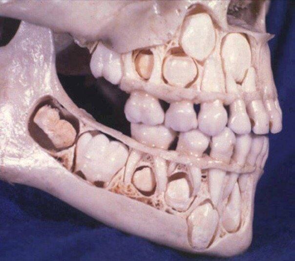 Череп ребенка до потери молочных зубов