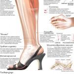 Вред каблуков