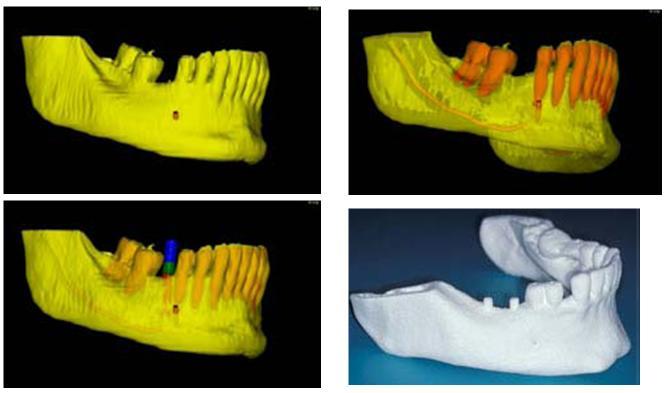 3d принтеры в стоматологии