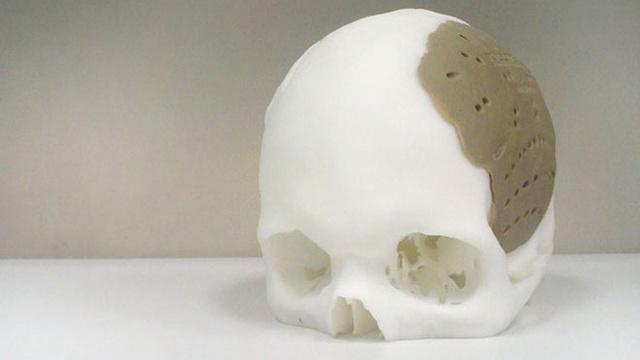 череп 3d  принтер