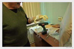 Протез кисти руки в России