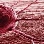Как не заболеть раком