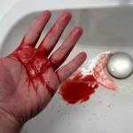 кашель с кровью
